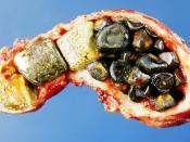 English: Opened gall bladder containing numerous gallstones Deutsch: Geöffnete Gallenblase mit zahlreichen Gallensteinen