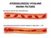 Coronary arthery atherosclerosis leeds to obstruction and thus to angina pectoris.