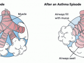 Asthma before-after