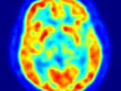 This is a transaxial slice of the brain of a 56 year old patient (male) taken with positron emission tomography (PET). The injected dose have been 282 MBq of 18F-FDG and the image was generated from a 20 minutes measurement with an ECAT Exact HR+ PET Scan