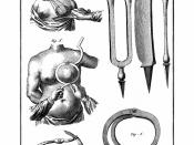English: breast cancer surgery in 18. century Deutsch: Brustkrebschirurgie im 18. Jhd.
