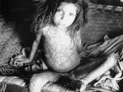 "English: This child is showning the pan-corporeal rash due to the smallpox variola major virus. Smallpox is a serious, contagious, and sometimes fatal infectious disease. The name smallpox is derived from the Latin word for ""spotted"" and refers to the rai"