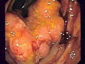 Endoscopic image of colon cancer identified in the sigmoid colon on screening colonoscopy for Crohn's disease