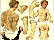 English: Skin diseases Français : maladies de la peau Deutsch: Hautkrankheiten. 1. Fischschuppenkrankheit (Ichthyosis). 2a. Feuchter Brand. 2b. Trockner Brand (Mumifikation). 3. Pemphigus. 4. Schuppenflechte (Psoriasis). 5. Ringflechte (Herpes iris). 6. N