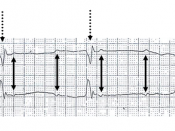 3rd degree heart block