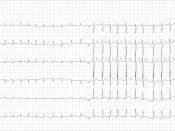 English: ECG from a man with bradycardia-tachycardia syndrome following mitral valvuloplasty, resection of the left atrial appendage and maze procedure. The ECG shows atrial fibrillation at around 126 beats per minute.