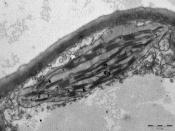 Chloroplast 12000x