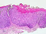 Vulvar Intraepithelial Neoplasia, Grade 3 (VIN 3)