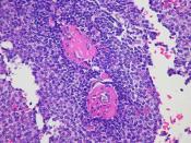 Thoracic splenosis  Case 187