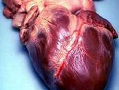 English: Human heart. Picture taken during autopsy.