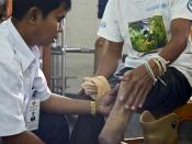 survivor has his prosthetic checked at COPE centre, Vientiane, Laos