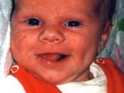 English: Infant smiling (1 month old)