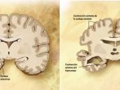 English: Combination of two brain diagrams in one for comparison. In the left normal brain, in the right brain of a person with Alzheimer's disease. Diagram of the brain of a person with Alzheimer's Disease. Diagram of a normal brain. Español: Esquema de