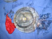 Breast implant: An explanted, ruptured silicone implant; the fibrous capsule, the shell, and the extruded filler gel.