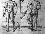 Ambroise Paré (1510?-1590): Les oeuvres d'Ambroise Paré, 1585.