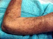 Picture of a female patient's left arm, showing skin lesions caused by Scleroderma.