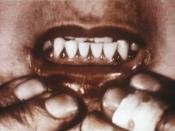 Scorbutic gums, a symptom of scurvy. Note gingival redness in the triangle shaped interdental papillae