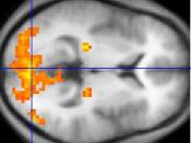 A fMRI scan showing regions of activation in orange, including the primary visual cortex (V1, BA17).