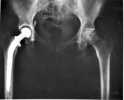 The patient's right hip joint replaced by a metal head and a plastic cup.