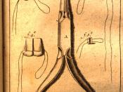 Dental needle-nose pliers designed by Fauchard in the late 17th century to use in prosthodontics.