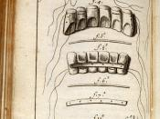Early 18th century diagram made by doctor Fauchard on his book where he shows the procedure involved in teeth restoration.