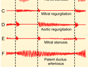 English: Phonocardiograms from normal and abnormal heart sounds