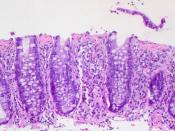 49-year-old male with weight loss, diarrhea, and endoscopically normal mucosa.