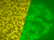 A porcine islet of Langerhans. The left image is a brightfield image created using hematoxylin stain; nuclei are dark circles and the acinar pancreatic tissue is darker than the islet tissue. The right image is the same section stained by immunofluorescen