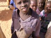 Child at a MSF camp in Chad