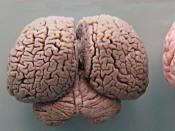 Tursiops truncatus (bottlenose dolphin) brain compared with brains of wild pig (Sus scrofa) and a plastic model of a human brain (Homo sapiens).