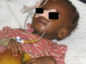 A severely malnourished child with a nasogastric feeding tube and IV. Nigeria (Please cover the child's eyes - Patient confidentiality)