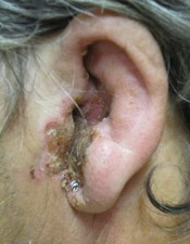 A severe case of otitis externa.