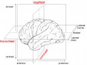 3 dimensies hersenen