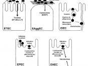 ce shéma décrit les modes d'actions des grands pathovars de la bactérie Escherichia coli induisant des diarrhées