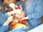 A Caesarean section in progress.