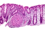 English: Esophagus - intermed mag. Image:Crohn's disease - esophagus - intermed mag.jpg