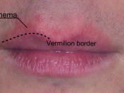 English: Erythema above the lips, appeared concomitantly with chapped lips due to exposure to very cold temperature.