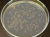 English: K12 E Coli colonies on a plate.