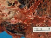 Carcinoma of bronchus (lung). Squamous cell carcinoma. Tumour is on the left, obstructing the bronchus. Beyond the tumour the bronchus is inflamed and contains mucus.