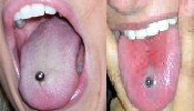 Straight barbells with either plastic or metal beads are commonly worn in tongue piercings.