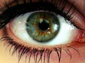Deutsch: Zentrale Heterochromie: Grüne Iris, um die Pupille herum jedoch ein braun-gelber Ring