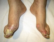 English: Severe gout complicated by tophi (exudate is uric acid crystals)