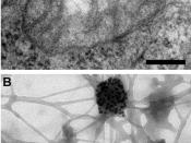 English: Electron microscopy reveals mitochondrial DNA in discrete foci. Bars: 200 nm. (A) Cytoplasmic section after immunogold labelling with anti-DNA; gold particles marking mtDNA are found near the mitochondrial membrane. (B) Whole mount view of cytopl