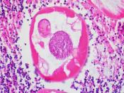 Pinworms (Enterobiasis) in the Lumen of the Vermiform Appendix