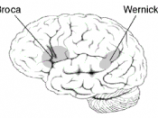 Location of two brain areas that play a critical role in language, Broca's area and Wernicke's area