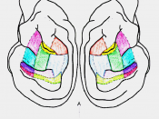 English: Mirrored lateral view of a cat brain with the 13 acoustically responsive sections of the auditory cortex shown by dotted lines, and 10 sections colored to depict those implanted with cryoloops. Modified from Figure 1 of Malhotra, S., & Lomber, S.
