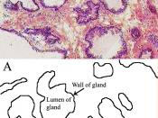 Histological section of prostate gland.
