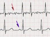 Scheme of atrial fibrillation (top) and sinus rhythm (bottom). The purple arrow indicates a P wave, which is lost in atrial fibrillation.