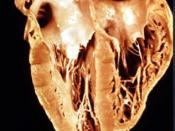 Gross anatomy of a heart that has been damaged by chronic Chagas disease - see also: Chagas heart, radiology