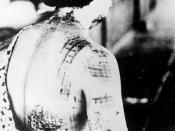 Japanese woman suffering burns from thermal radiation after the United States dropped nuclear bombs on Japan.